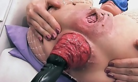 Most affecting prolapse scene! cervix, fisting, max stretch
